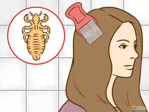 728px-get-rid-of-lice-step-5-version-4